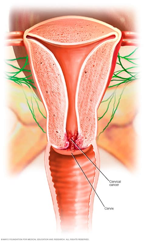 cervical cancer mayo clinic