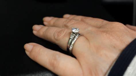 wedding ring rash south florida reporter