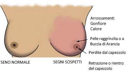 tumore all orecchio interno sintomi scoperta proteina favorisce la diffusione cancro