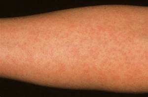 Pics For > German Measles