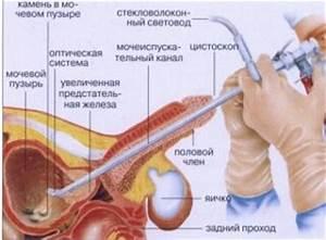 Петрушка в лечении аденомы