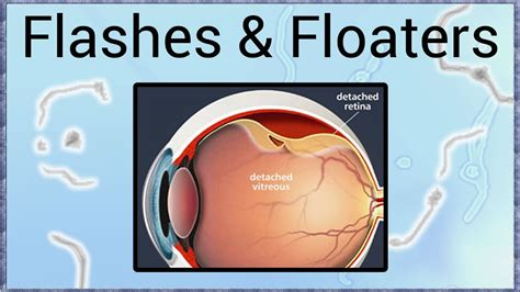 flashes of light what causes floaters and flashes of light in the eye www