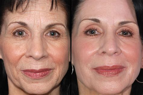 Under eye laser resurfacing cost