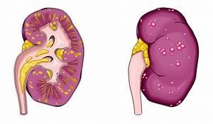 Пиелонефрит симптомы гипертония