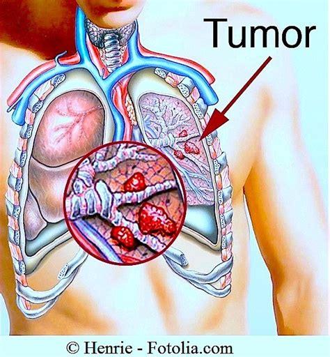 Dolore Alla Gabbia Toracica Schiena by Lungenkrebs Endstadium Symptome Lungenentz 252 Ndung