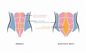 My Diastasis Recti Story