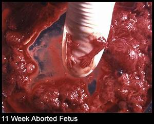 Abortion Picture