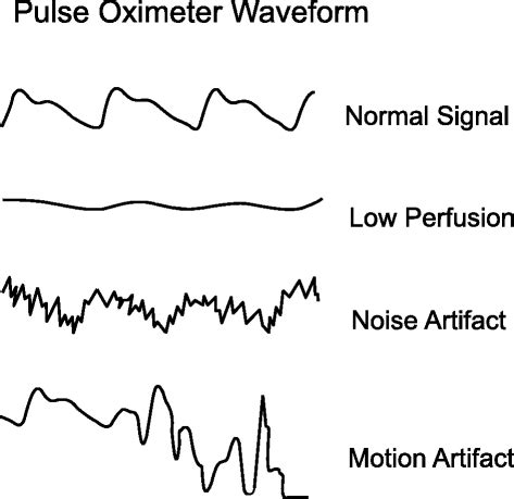 Pulse Oximeter Reading Pneumonia