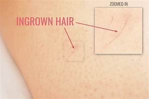 How To Prevent Ingrown Hairs On Legs When Shaving