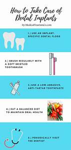 Are Dental Implants Really Worth It