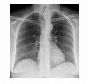 Imaging Case Of The Week 283