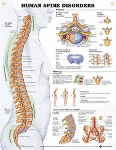 Human Spine Disorders 20x26 | Anatomy, Medical and Bodies