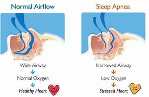 6 Natural Treatments For Sleep Apnea