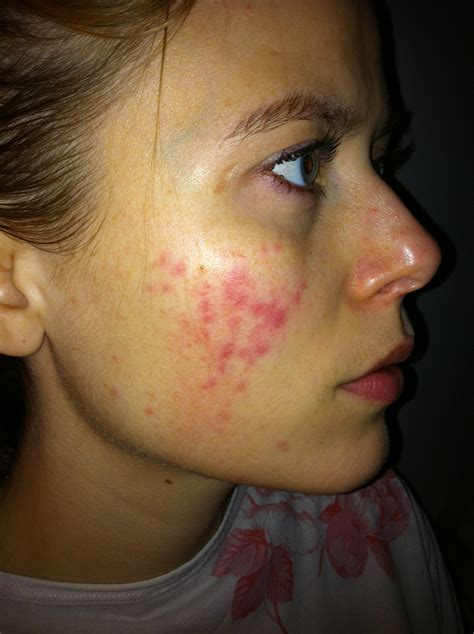 What Is Rosacea Makeup And Medicine
