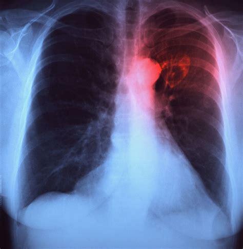 borderline diabetes diabetes chest pain  tightness