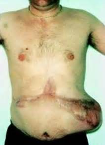Inflamed Pancreas Symptoms