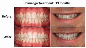 invisalign-before-and-after-crossbite - Denise Hajjar