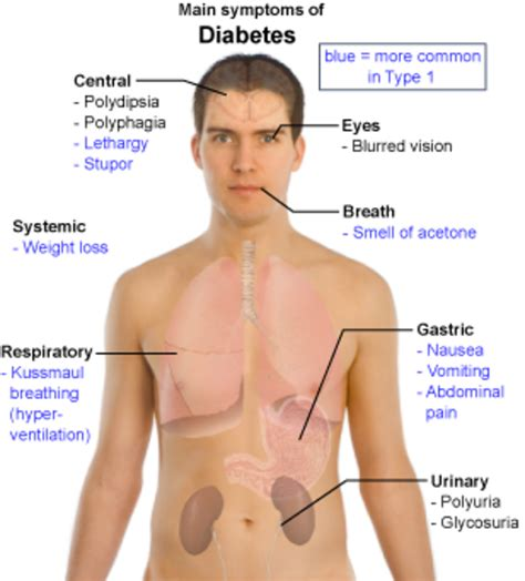 main symptoms  diabetes opposing views
