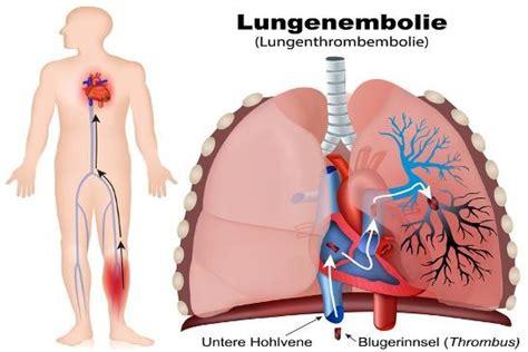 lungenembolie symptome diagnose therapie