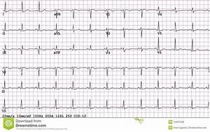 Electrocardiograma De 12 Terminales De Componente Fotos de archivo libres de regalías Imagen