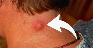 4 Natural Remedies Will Remove Epidermoid Cysts In 7 Days