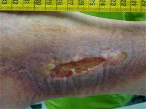 (4) Wundversorgung Thrombose, Ulzera Crura 110714