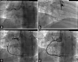 Accidental Injury Of The Right Coronary Artery During