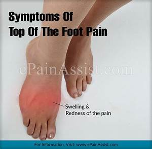 Pin On Arthritis Supplements