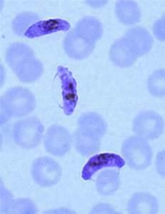 Plasmodium falciparum: This species of malaria has ...