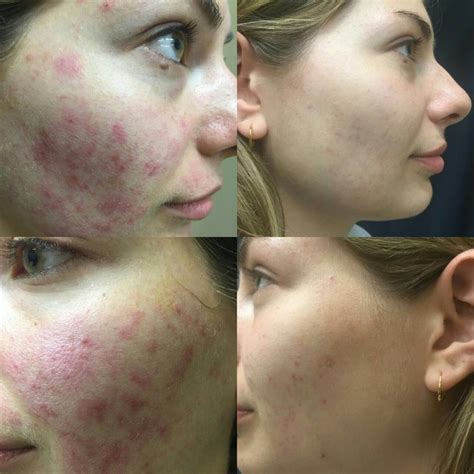 laser treatment  acne scars  toronto acne scar