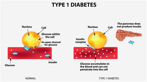 type  diabetessymptomcausesdiagnosis treatment