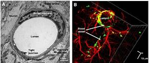 The Neurovascular Unit  A  Electron Microscopy  Tem  Of
