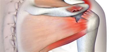 Rotator Cuff Injury and Surgical Repair – Medmovie.com