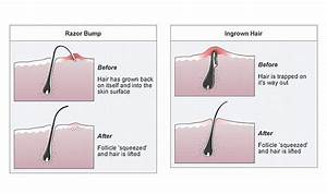 Here U0026 39 S Why You Get Ingrown Hairs