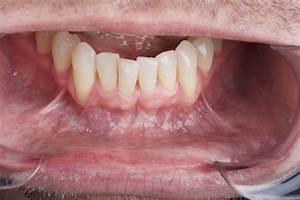 Self Oral Cancer Screening (SOCS) Education Program ...
