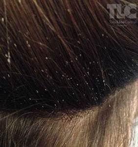 Lice Photos - Total Lice Control Shampoo and Lice Removal