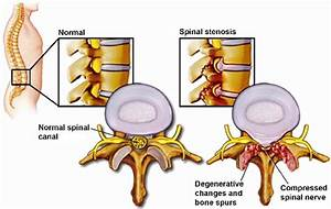 Showing Normal Lumbar Spine And Spinal Stenosis With