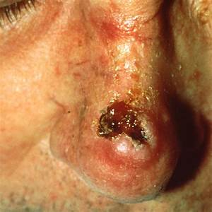 What Is Squamous Cell Carcinoma? - SkinCancer.net