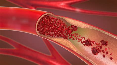 10 Easy Ways to Improve Circulation and Blood Flow ...