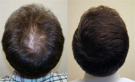 FUE Hair Transplants For Hair Restoration Treatment | Hair