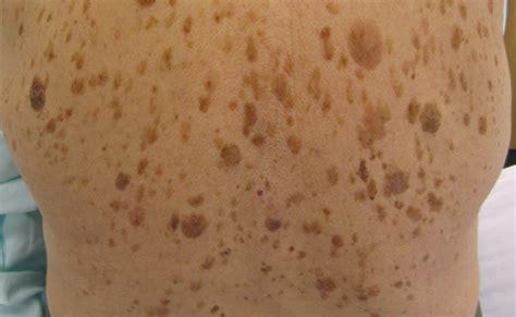 alterswarzen seborrhoische keratose aussehen entfernung