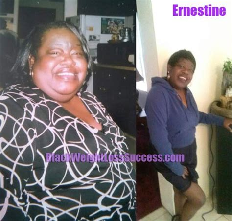 ernestine lost  pounds  weight loss surgery black