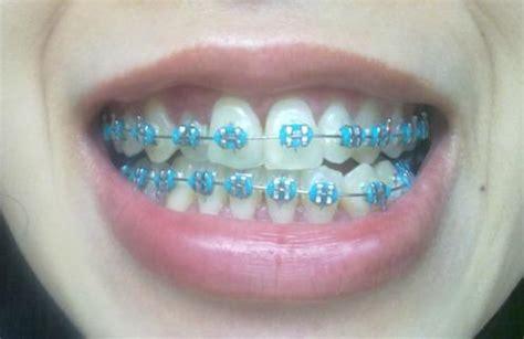what color braces should i get quiz what colour track braces should i get personality