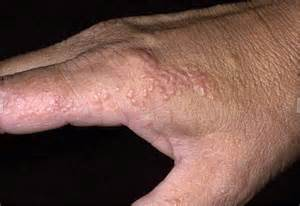 Foot Pain as related to Dyshidrotic eczema - Pictures