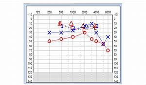 Pure Tone Audiogram Showing Moderate Conductive Hearing