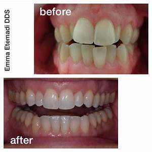 Before and After - Dentists Duvall WA | Duvall Family Dental