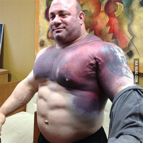 Scott Mendelson After He Tore His Pec Breaking The World