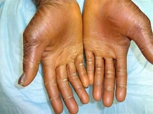 Ichthyosis Vulgaris - A Rare Genetic Skin Disease