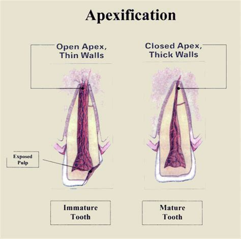Nbde Dental Decks by Rxdentistry Apexification Amp Apexogenesis
