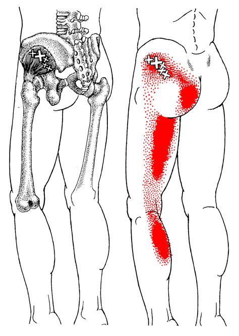 Pijn aan de voorzijde van de knie - Sama